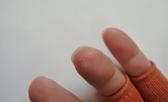 指 水泡 ぶつぶつ